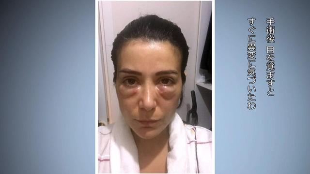 画像: 目、鼻、胸、お腹など、ボッチドの症例はさまざま。