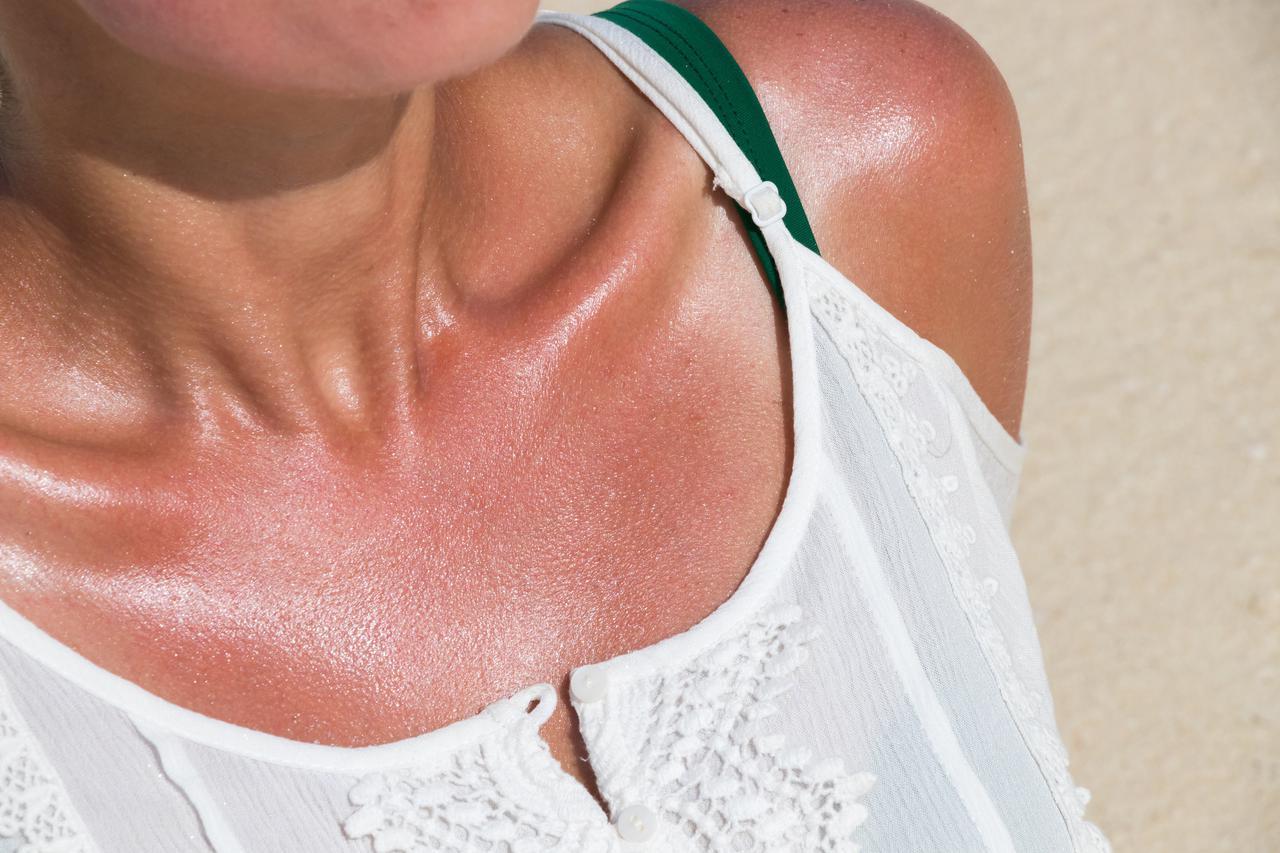 画像: そもそも、紫外線アレルギーとは?