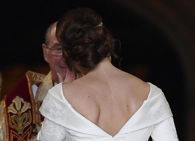 画像: ユージェニー王女、美としての傷跡