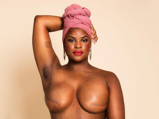 画像: 乳がんで乳房を全摘出したエリカ・ハート、トップレスで啓発運動【ピンクリボン月間】 - フロントロウ -海外セレブ情報を発信