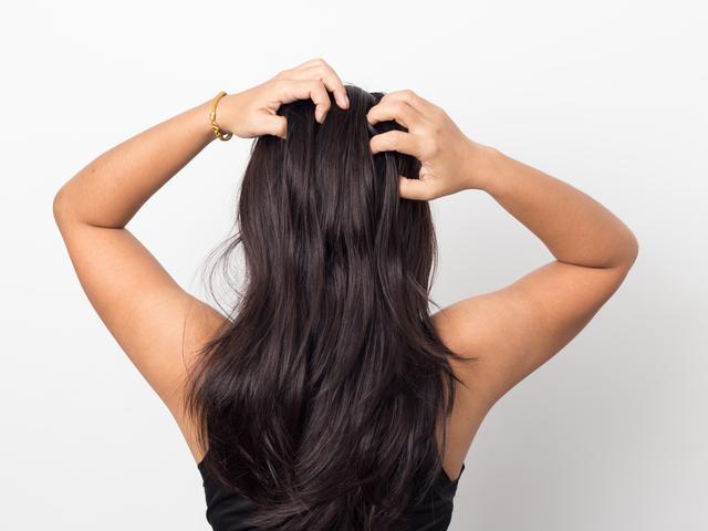 画像1: つけすぎたヘアケア剤や皮脂汚れが原因!?