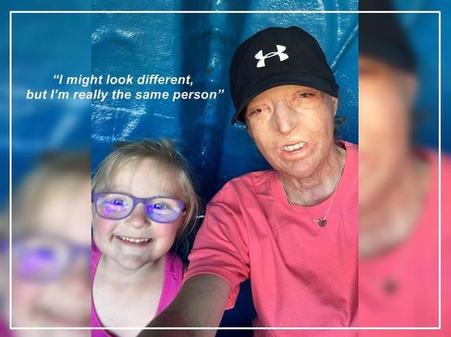 画像: 顔全体に重度のやけどを負った女性、5歳娘のある「行動」に救われる - フロントロウ -海外セレブ情報を発信