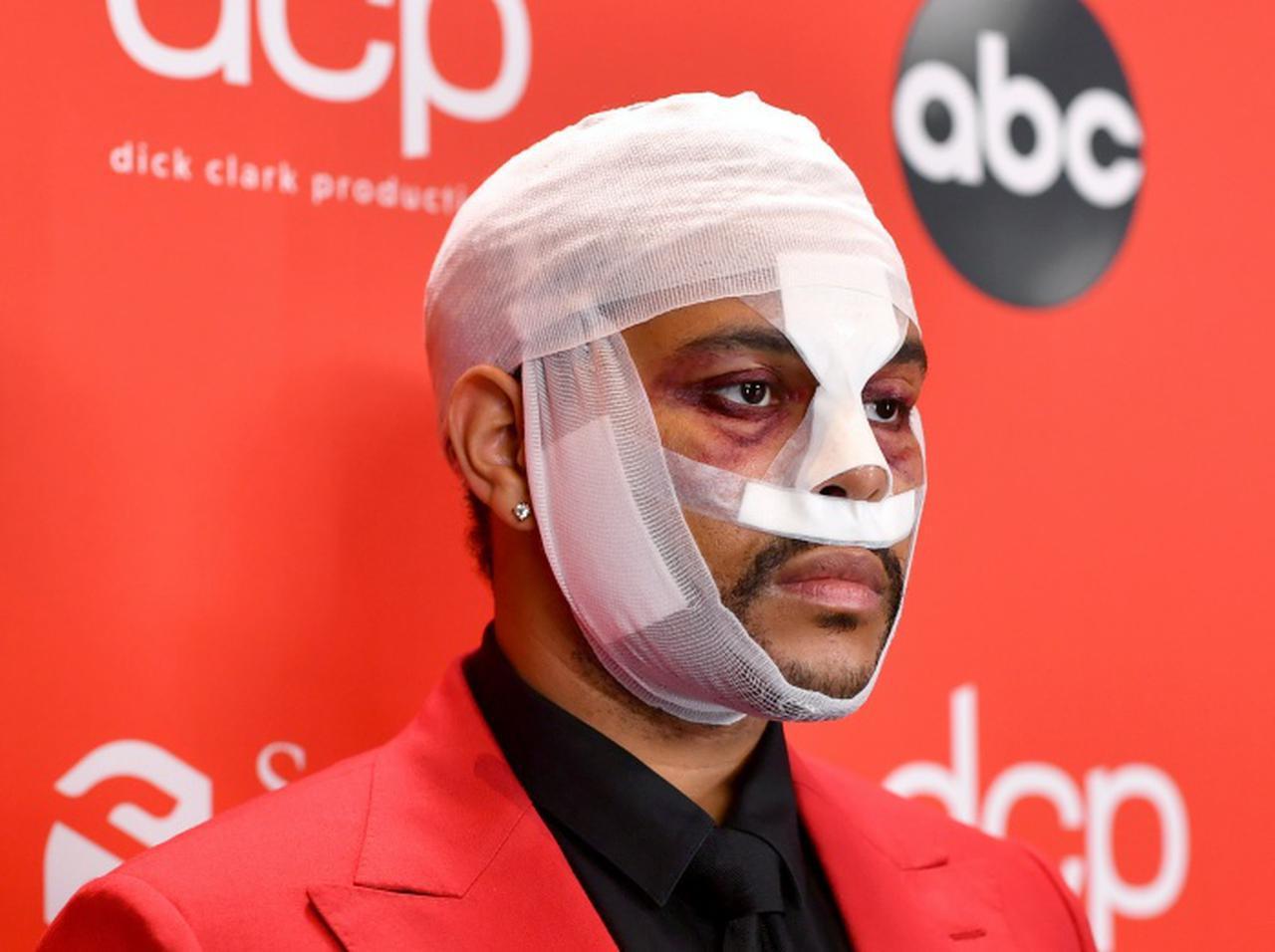 """画像: ザ・ウィークエンドが顔面大怪我⁉︎どんどん悪化する""""病み系""""ルックスで話題に【AMA2020】 - フロントロウ -海外セレブ情報を発信"""