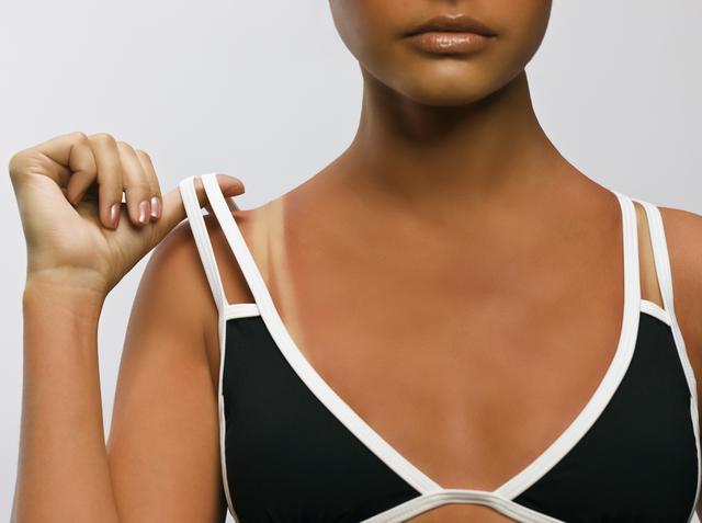 画像: 日焼け後の肌の反応でチェック