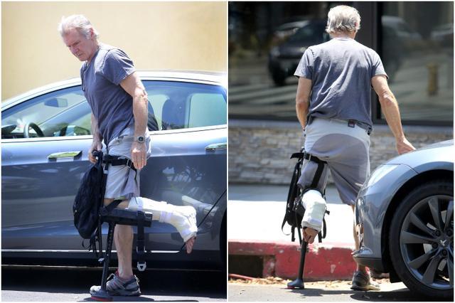 画像: 2014年、脚に装着するタイプの松葉杖をついて歩く痛々しい様子。