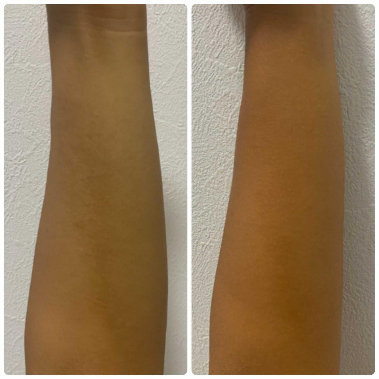 画像: 左:使用直後 右:翌日