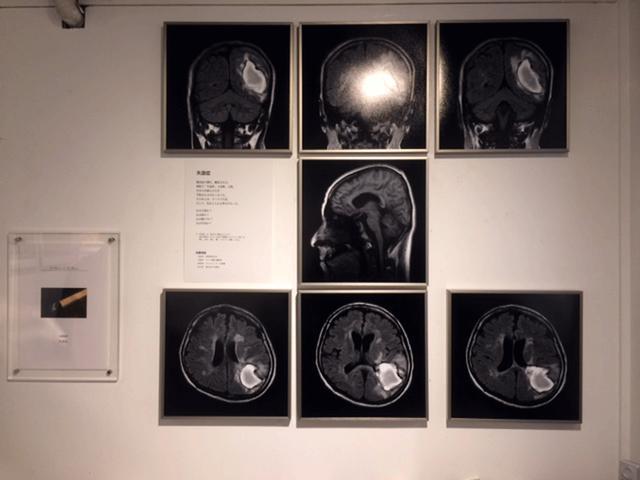 画像: CTスキャン画像。白い部分が脳出血を発症した箇所だという。