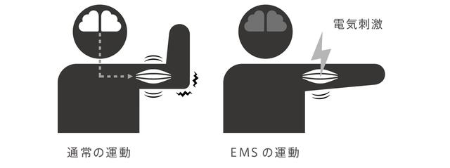 画像: 通常の筋肉の運動は脳からの指令によって行われるが、EMSの場合は機器からの電気刺激によって行われる。