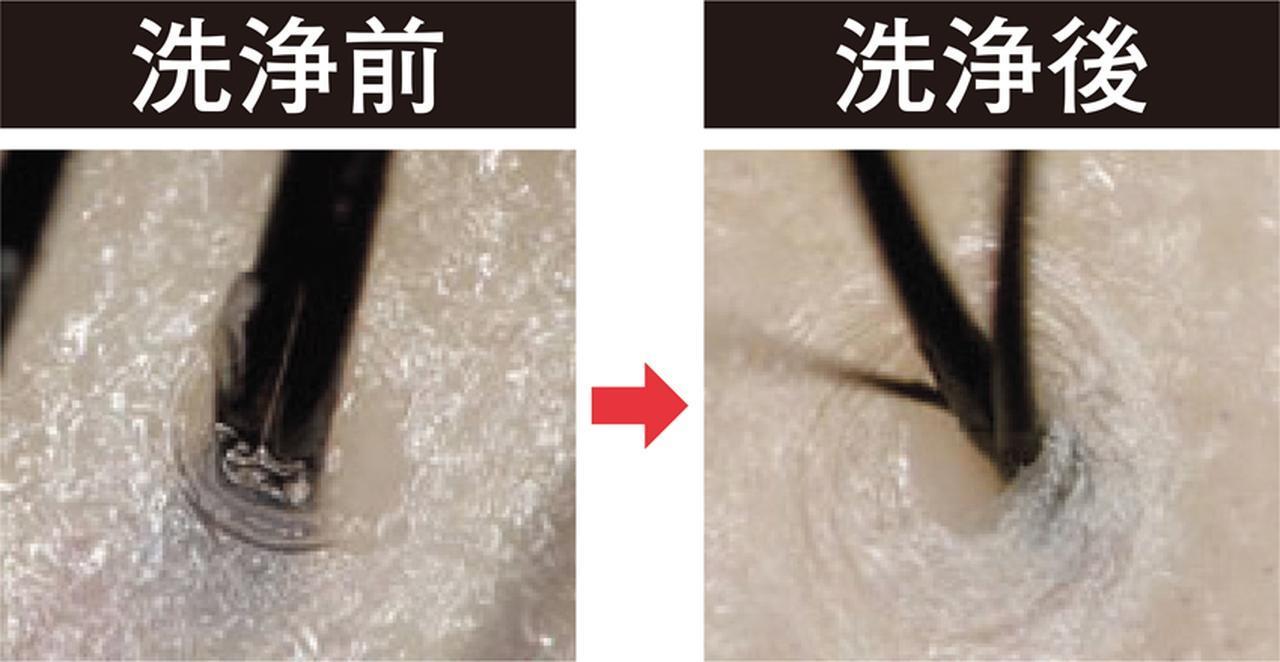 画像: 毛穴にたまった皮脂汚れもスッキリと落とし、かゆみも軽減できる。