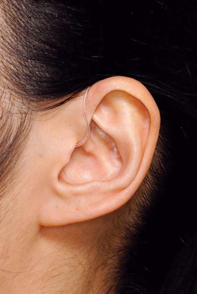 画像: サイズは十分にコンパクトで、耳にかけてしまうとほとんど目立たない。
