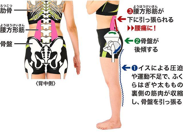 画像: ■腰痛とふくらはぎ、太ももの関係
