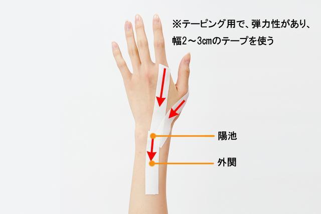 画像: ①痛みのある指のつけ根の関節から陽池まで、引っ張るようにテープを貼る。 ②陽池から外関まで、テープを引っ張るように貼る。 ※動かして、症状のある指の動きがほどよく制限されていればOK。