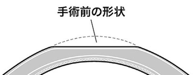 画像: めくった上皮細胞部分をもどす。角膜の形状が平坦化する