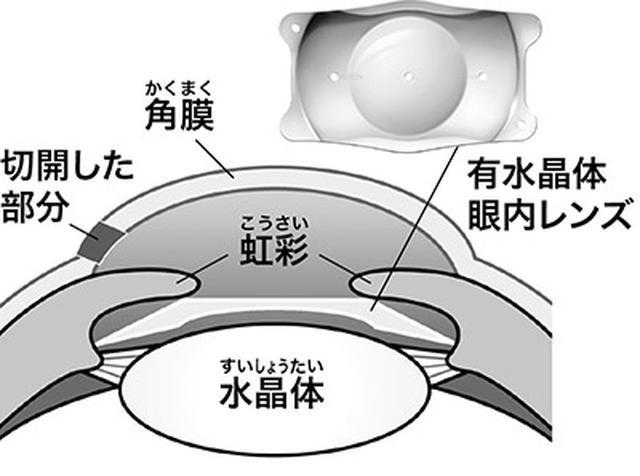 画像: 眼内レンズが虹彩と水晶体の間に固定される。角膜を切開した穴は自然にふさがる