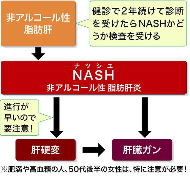 画像1: 【NASH(非アルコール性脂肪肝炎)とは】どんな人がなりやすい?検査でわかる?