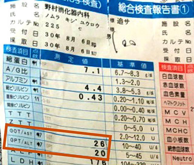 画像: 野村先生が2018年8月に受けた血液検査の結果。ASTは26、ALTは20と基準値以下を示している。
