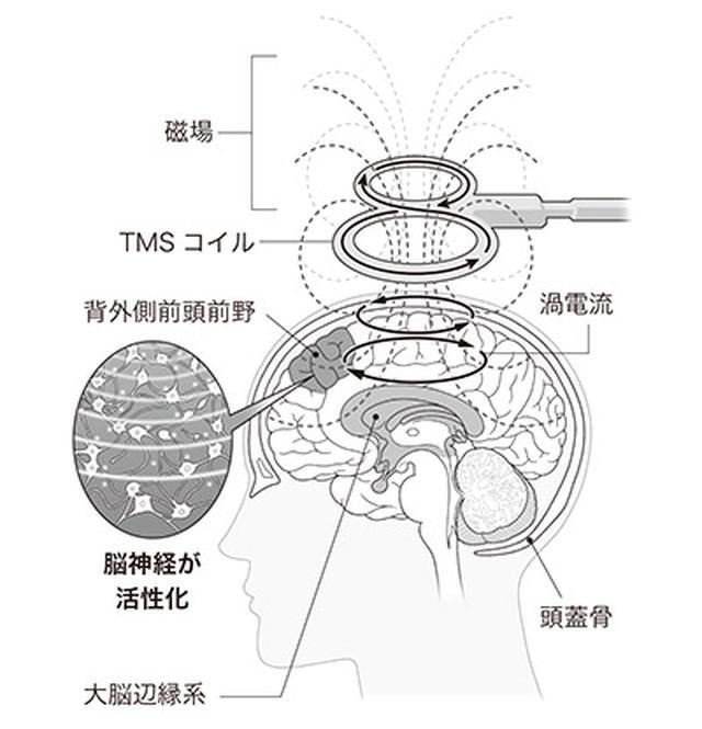 画像: 磁場に誘導されて発生した渦電流が脳の神経細胞をつなぐシナプスを刺激する[イラスト/勝山英幸]