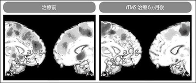 画像: 左:濃く写っている部分は、脳の血流が通常よりも低下していることを示す 右:影の部分が減り脳の血流量が回復しているのがわかる [画像引用/Kito et al., J ECT 2011;27: e12‐e14]
