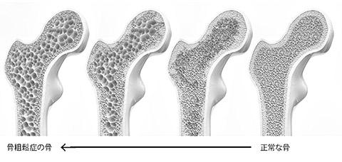 画像: 骨を内側で支えているスポンジ状の「骨梁」の太さや本数が減り、骨密度が低下する