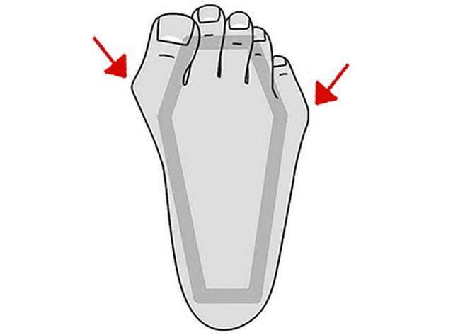 画像5: 【足指伸ばしのやり方】足指ケアでひざ痛・腰痛・体の痛みの根本原因を取り除く!