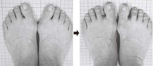 画像: 25年にわたる外反母趾の親指の変形が半年で改善し痛みも解消(60代・女性)