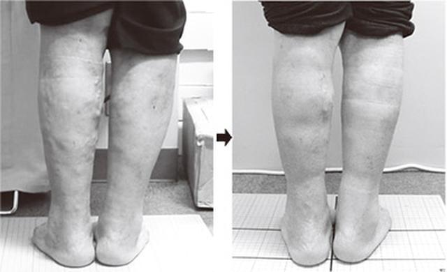 画像: 左足の下肢静脈瘤の隆起が4ヵ月で目立たなくなった(70代・女性)