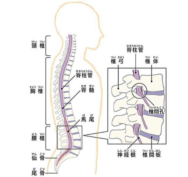 画像: 【脊柱管狭窄症を改善】正しい「筋トレ」の必要性とは?間欠跛行を解消するスクワットのやり方
