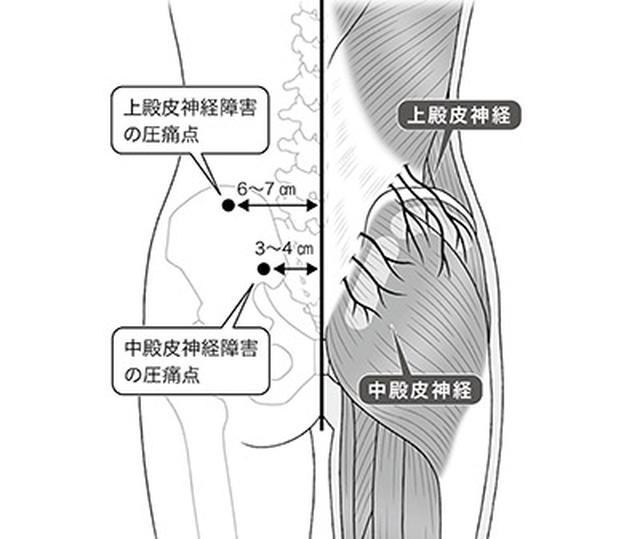 画像1: 【腰が痛い】原因は神経の締め付け?慢性腰痛「上・中殿皮神経障害」の最新治療