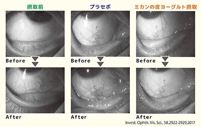 画像2: 【花粉症対策】目のかゆみやくしゃみに効果!みかんの皮とヨーグルトの組み合わせが最強