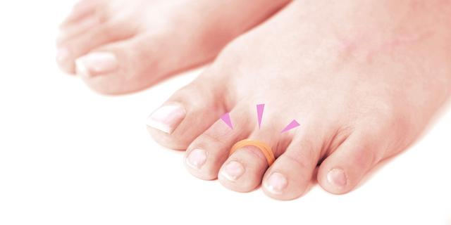 足 親指 横 痛み