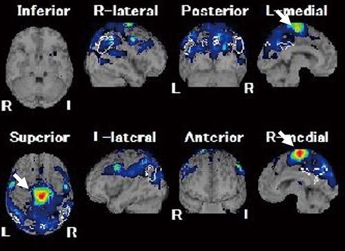 画像: 64歳・男性の脳の血流の画像。男性は強いストレスがあり、歩行中足の力が抜け、倒れる。脳のCTには異常がないが、血流の画像を見ると、一次運動野の足の領域が異常に低下している