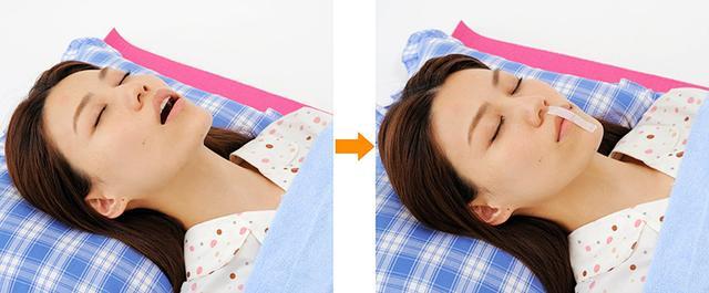 画像: 睡眠時の口呼吸を防ぐには口テープが有効