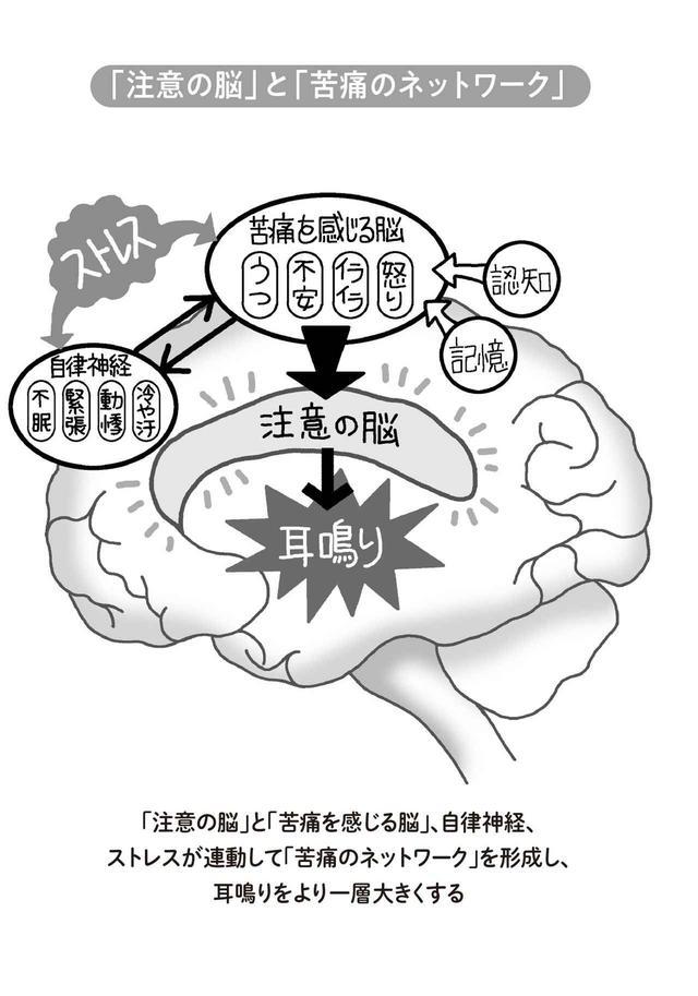 画像: 耳鳴りに対して過度に脳が興奮する