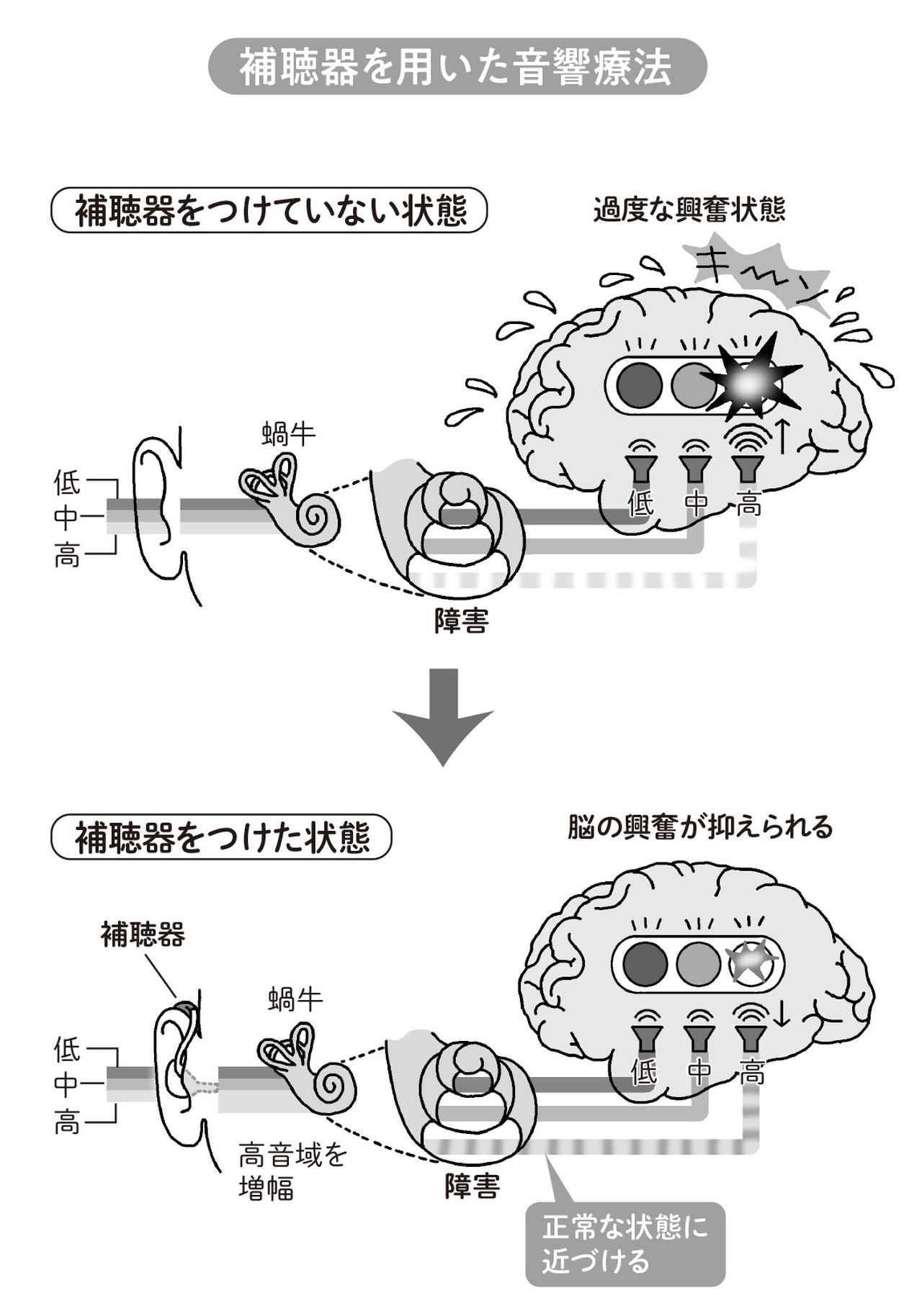 画像: 補聴器リハビリのやり方