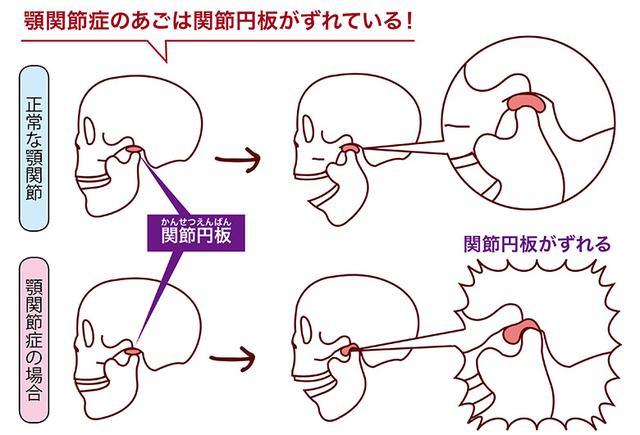 画像1: 【顎関節症の症状】口が開かない・音がする・痛いを改善!早めの対処に「コットン嚙み」がおすすめ