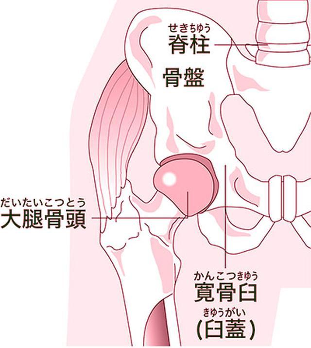 画像: 【伊東ゆかりさん】歌いたい!大腿骨頭壊死の激痛を手術とリハビリで乗り越えた体験談