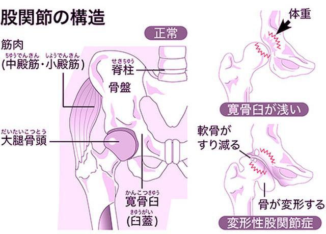 画像: 女性に多く遺伝的要素も関係する