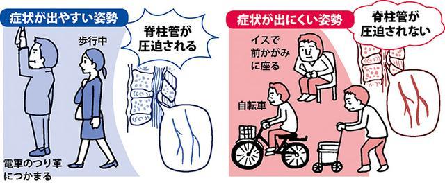 画像: 【脊柱管狭窄症の体操】痛みやしびれを改善する姿勢 再発を予防する体操も紹介