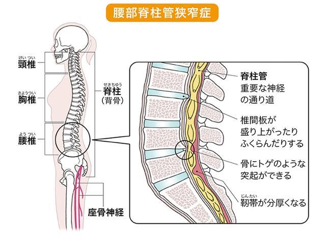 画像3: 【座骨神経痛とは】痛みやしびれの原因がわかるチェックリスト 腰に負担をかけない生活のコツ・セルフケア方法を専門医が解説