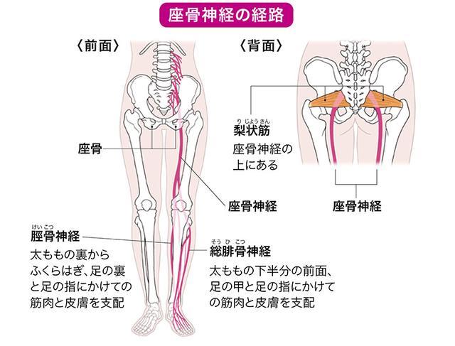 画像1: お尻のコリが原因の【坐骨神経痛】の見分け方と自宅でできる対処法