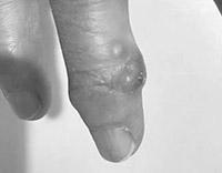画像: へバーデン結節でコブができた指の関節