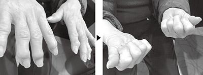 画像: 10年来の指の変形と激痛が1カ月で大改善!手をギュッと握れるようになった