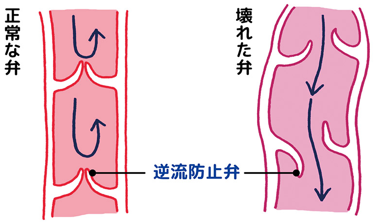 画像: 【正常な弁】 弁がぴったり閉じ、押し上げられた血液の逆流を防ぐ 【壊れた弁】 弁に隙間ができて血液が逆流し、血管が伸びたり膨れたりして静脈瘤が形成される
