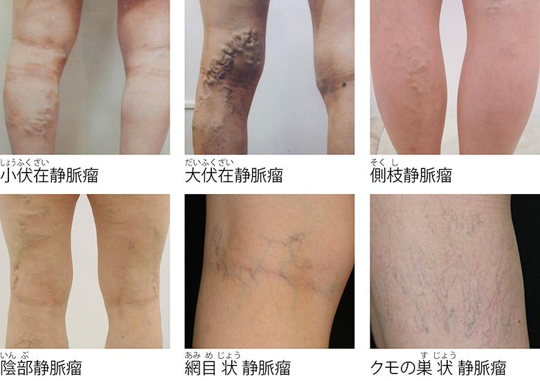 画像1: 【下肢静脈瘤とは】良性の病気だが放置すると悪化することも。症状や予防・改善方法を血管外科医が解説