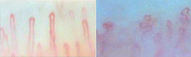 画像: 左:問題のないきれいな毛細血管 右:ゴースト血管 [画像提供:あっと株式会社血管美人]