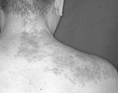 画像: 神経に沿って帯状に、痛みと水ぶくれを伴う発疹が起こる