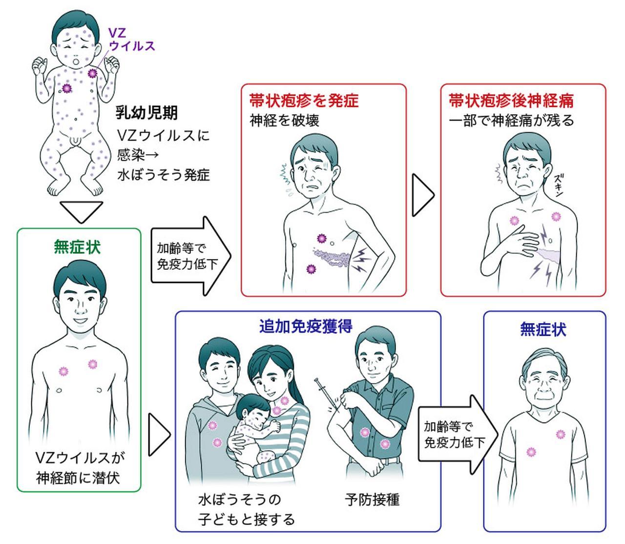 画像: 【帯状疱疹の最新治療】ワクチンで予防は可能?副作用が少なく鎮痛効果が持続する新薬も登場