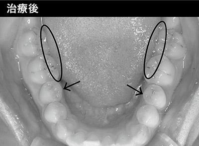 画像: 歯を全体的に丸めたことで、歯型が舌につかなくなった。舌ストレスを軽減したことで、あごの痛みがなくなり、発音もスムーズに。