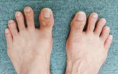 画像: 「痛みと姿勢の外来」を担当する石田力さんの足指