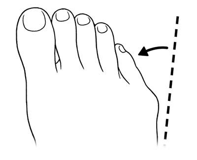 画像2: 【足指のばし(ゆびのば体操)のやり方】体の痛みは足指の変形が関係する!今井一彰医師がポイントを解説